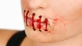 На Украине шахтёру-переселенцу разорвали рот за русский язык