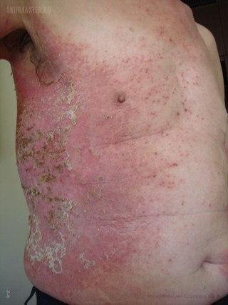 стероиды при лечении кожных заболеваний