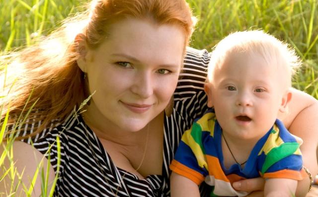 Некоторые исследования показывают, что женщины с одним яичником чаще рожают ребенка с синдромом Дауна.