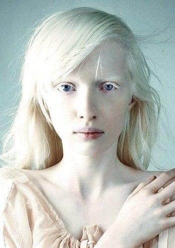 люди альбиносы фото с фиолетовыми глазами