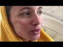 Жена Андрея Чуева сделала лазерную шлифовку кожи (07.2018)