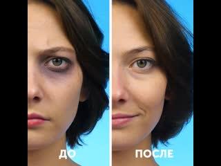 Женские Хитрости (vk.com/womantrlck) первая помощь в экстренных ситуациях
