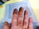 Косметическая салфетка от Greenway прекрасно очистит кожу от грибного налета