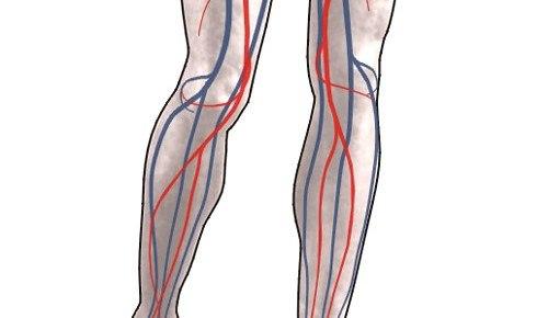 Как лечить кровоизлияния на ногах