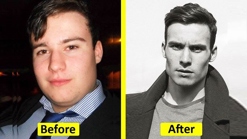 "People Who Used To Be ""Ugly Ducklings"" Share Their Transformations"