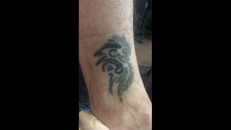 Удаление татуировки на запястье
