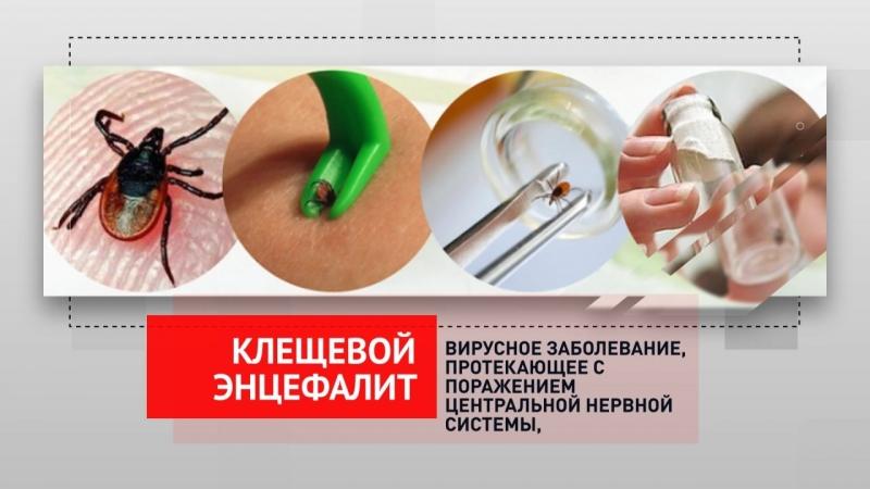 Клещевой энцефалит