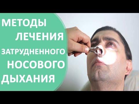 Затрудненное дыхание 😰 Причины и способы лечения затрудненного носового дыхания