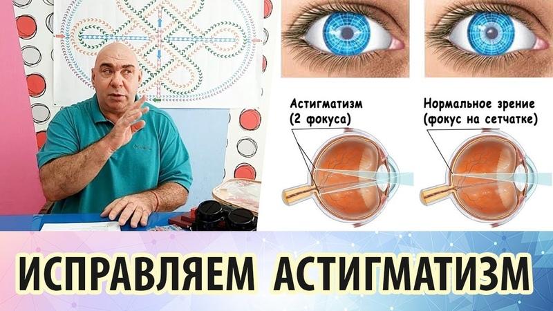 Что такое астигматизм и можно ли избавиться от него упранениями для глаз
