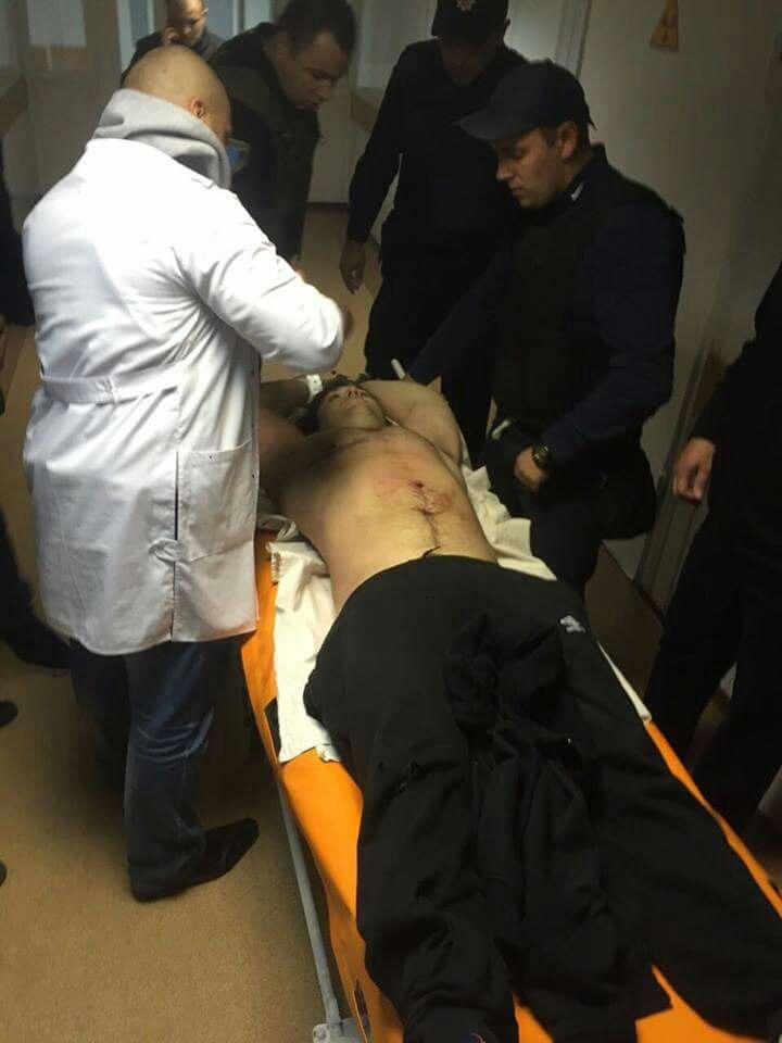 """Убийца патрульных в Днепре сам пришел в больницу с огнестрельным ранением, - """"056.ua"""" - Цензор.НЕТ 2859"""