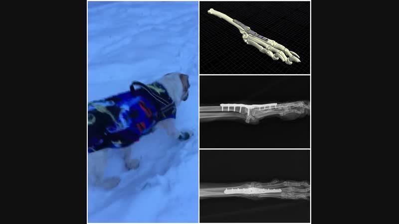 Клинический случай артродеза лучезапястного сустава при помощи индивидуальной анатомической пластины