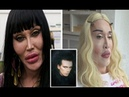 Plastic Surgery addicted Pete Burns admits he's had over 300 operations to fix botched surgery