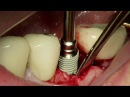 Dentium bone level implant system SuperLine