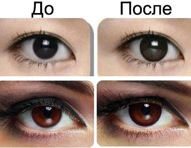 линзы увеличивающие глаза фото до и после