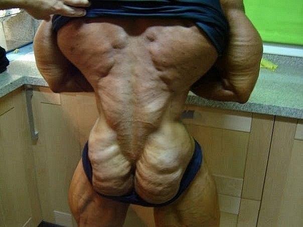 стероидов (даже при плохом