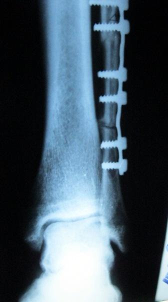 ложный сустав не оперированный