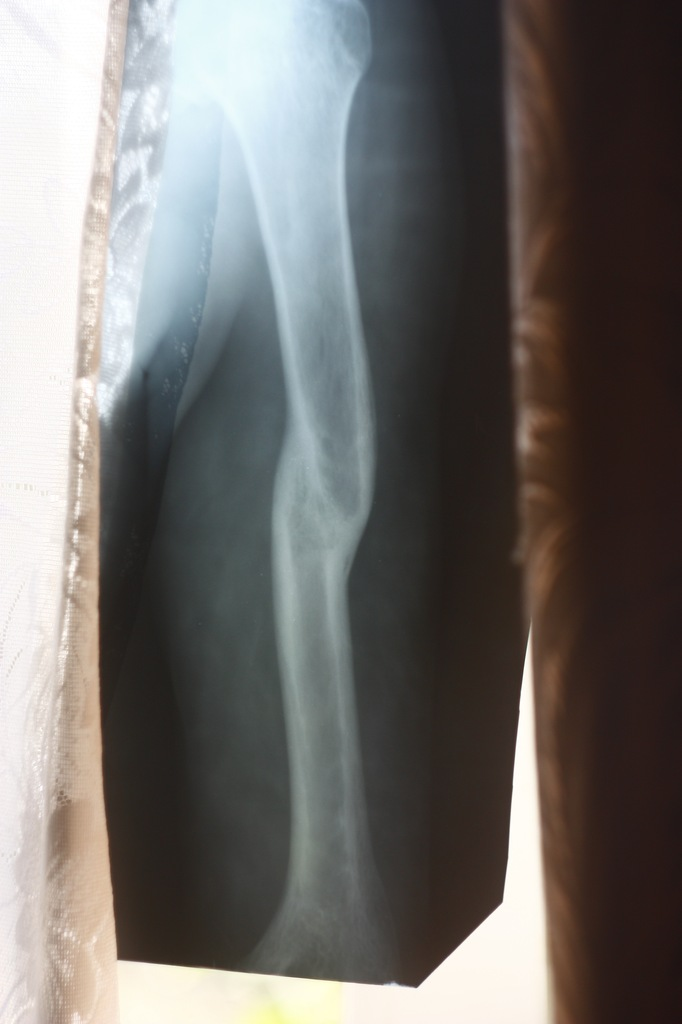 сломаная рука