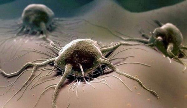 ...объяснить, почему рост онкологической опухоли.
