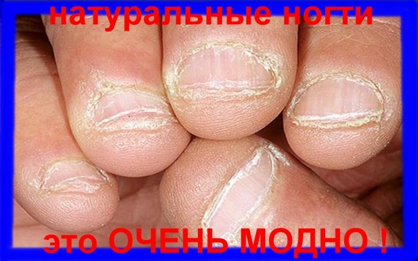 Очень широкие ногти