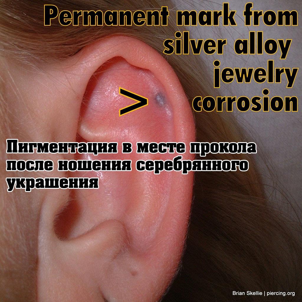 Пигментация кожи в результате длительного ношения серебряного украшения