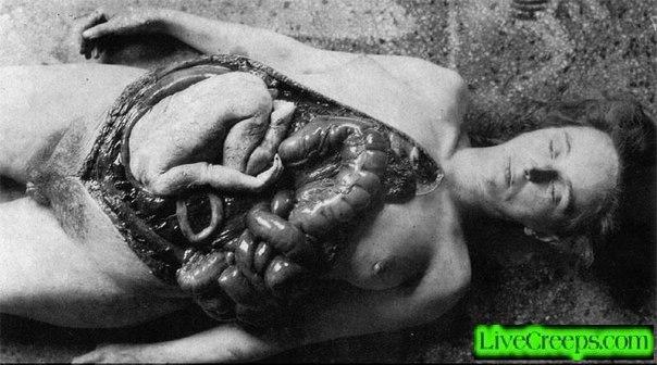 вскрытие трупа беременной женщины