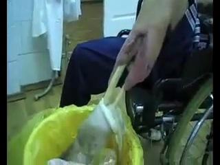 Ампутация левой ноги (Последствия приема Коаксила)