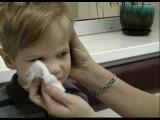 пропедевтика детских болезней. Systema respiratorium
