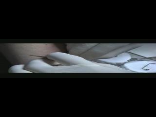 Плоскостной пирсинг - Левая рука - АППР