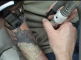 Medlite C6 Laser Tattoo Removal Video Clip