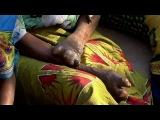 Моя Ужасная История - Альбиносы в Танзании
