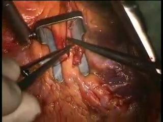 Коронарное шунтирование на работающем сердце без использования АИК