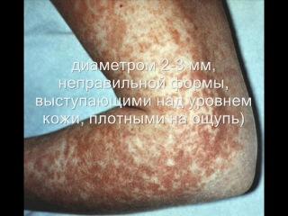 менингококковая инфекция-кино
