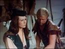 Робин Гуд и его сладострастные девушки / Robin Hood und seine lusternen Madchen (1969)