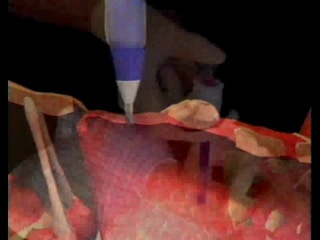 Коникотомия Экстренная процедура исп для обеспечения проходимости дыхательных путей