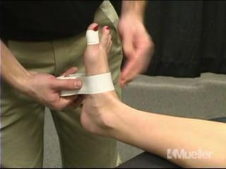2 - Тейпирование связок большого пальца ноги