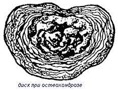 остеохондроз межпозвоночного диска
