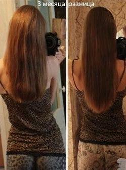 рост волос в месяц