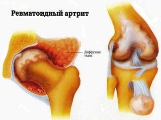 Симптомы молочницы и чем лечить