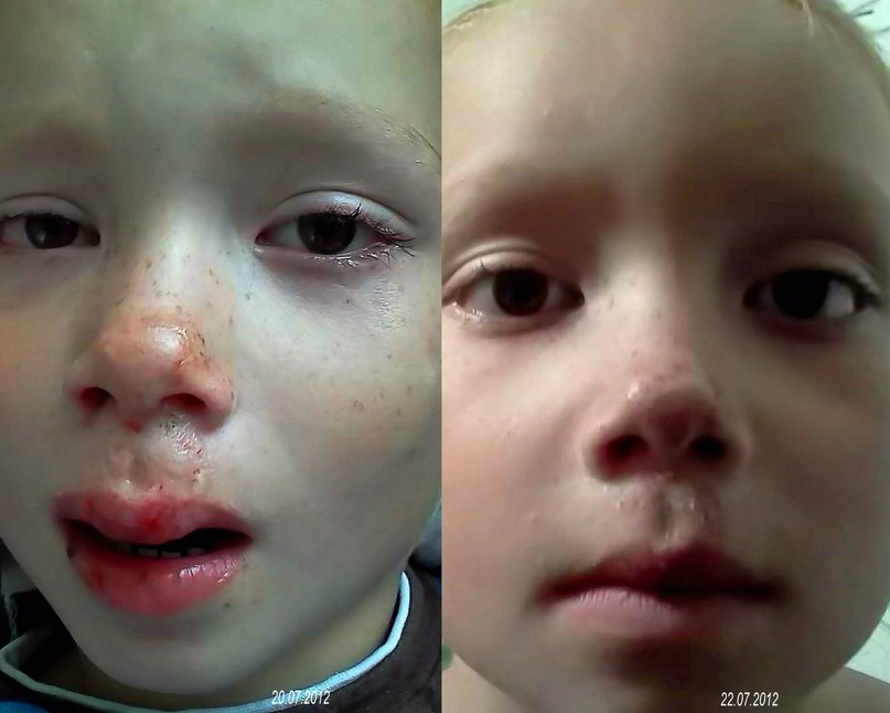 Рассек губу ребенок