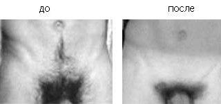 Фото женских интимных стрижек. стрижки газонов, или Мужские интимные.