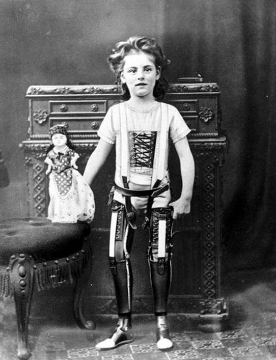 Искусственные ноги, Великобритания, 1890 год