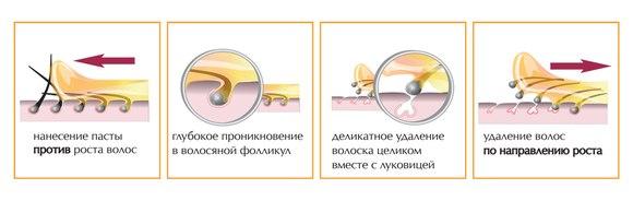 Схема удаления волос