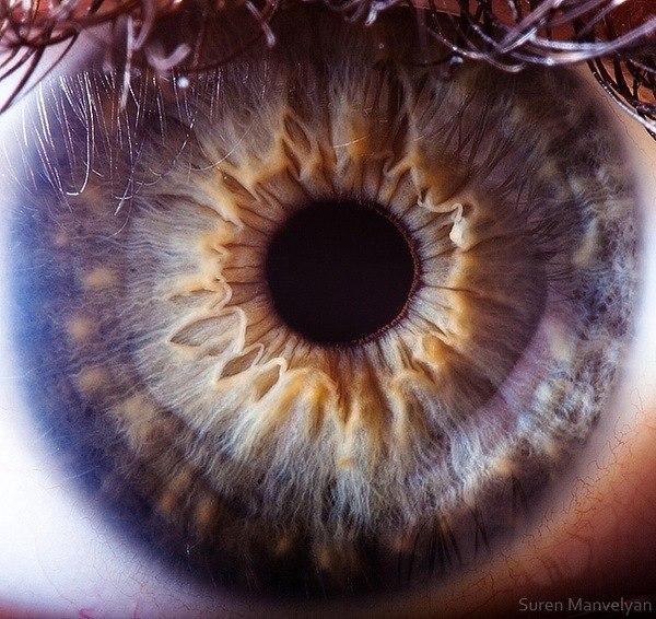Сурен Манвелян сделал снимки глазного