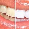 White Smile (Вайт Смайл)