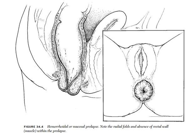 Геморроидальный цистит кто лечил