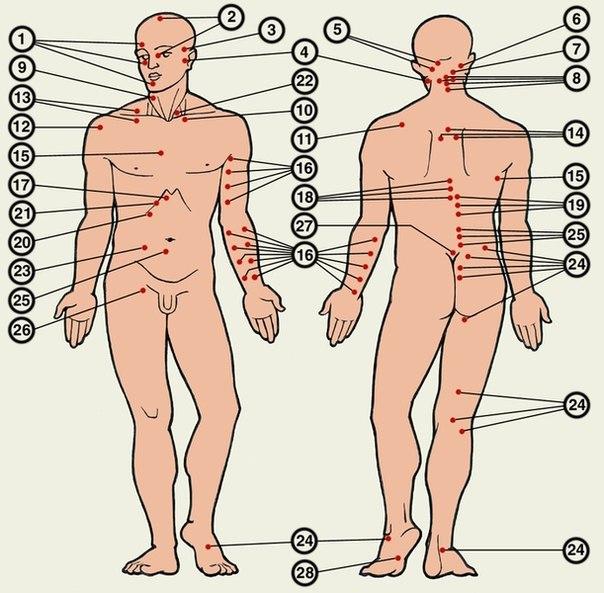 Болевые точки диагностические - участки на поверхности тела, давление на которые вызывает болевые ощущения.