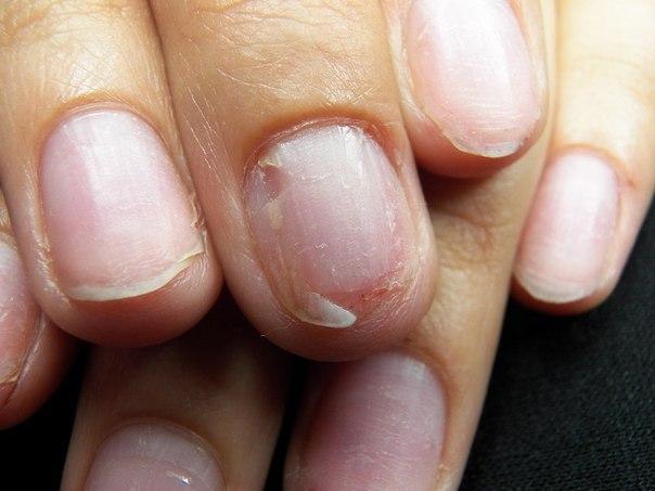 Снять нарощенные гелевые ногти в домашних условиях