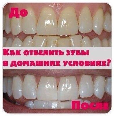Как быстро отбелить зубы в домашних условиях за 1 день без вреда