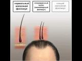Камуфляж для редких волос.Топпик  в интернет-магазине kupikrasoty.ru