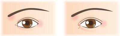 Операция по увеличению глаз - ProOperacii ru